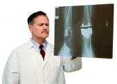 Cause artrite