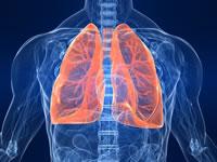 Definizione cancro al polmone