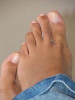 Cause micosi dei piedi