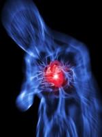 Definizione infarto del miocardio