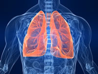 Riassunto sulla polmonite